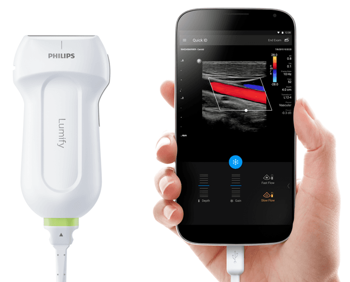 lumify-ultrasound-systems